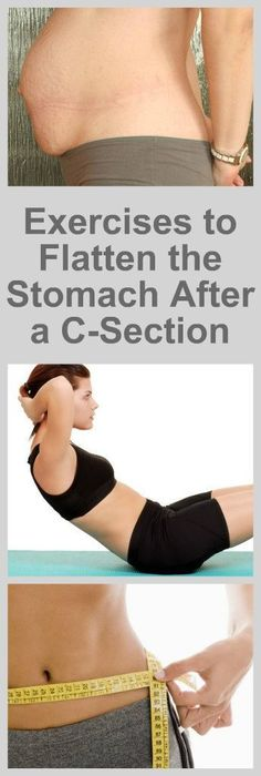 After C Section Workout, After Baby Workout, Post Baby Workout, Post Pregnancy Workout, Mommy Workout, Best Ab Workout, Ab Workout At Home, At Home Workouts, Exercising After C Section
