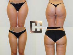 Vor und nach Fettabsaugung im Bereich der Innen- und Aussenseite der Oberschenkel Liposuction, Bikinis, Swimwear, Thong Bikini, Fashion, Wels, Linz, Thigh, Guys