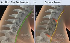 Artificial Disc Replacement vs. Fusion Endometriosis, Fibromyalgia, Degenerative Disc Disease, Ankylosing Spondylitis, Crohns, Stay In Shape, Back Pain, Surgery, How To Become