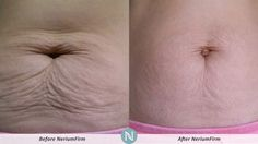 See the Real and Authentic Results of #AntiAgin NeriumFirm - Real Science, Real Results http://agapesf.arealbreakthrough.com, http://agapesf.theneriumlook.com