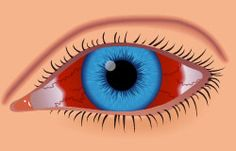 Dr. Chou discusses causes and healing time for broken blood vessels in the eye, and when to see an eye doctor.