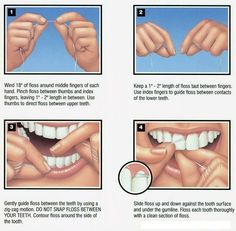 Here's a simple guide to show the proper way to floss #flossdaily #oralcare #oralhealth #oralhygiene #floss