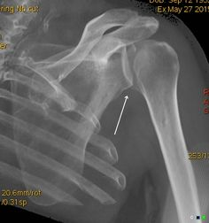 Posterior fracture dislocation glenohumeral joint: reverse Hill-Sachs lesion | Radiology Case | Radiopaedia.org