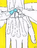 Lunotriquetral ballotment test (Reagan test) - stabilize the lunate between thumb and index finger of one hand and the triquetrum between the thumb and index finger of the other;the pisiform and triquetrum are pushed in a volar to dorsal direction; discomfort in this area suggests the possibility of injury to lunotriquetral interosseous ligament [Reagan D.S., Linscheid R.L., Dobyns J.H. Lunotriquetral sprains: J Hand Surg Am 1984; 9:502-514.]  Repinned by  SOS Inc. Resources