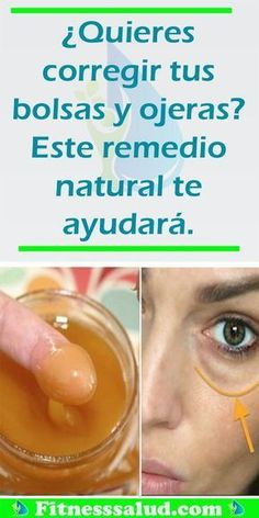 Watch This Video Beauteous Finished Cystic Acne Home Remedies that Really Work Ideas. Divine Cystic Acne Home Remedies that Really Work Ideas. Beauty Hacks For Teens, Luscious Hair, Home Remedies For Hair, Natural Beauty Tips, Natural Makeup, Clean Face, Tips Belleza, Facial Care, Hair And Beauty