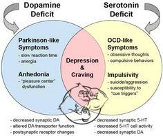 depression dopamine