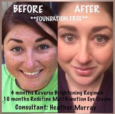 Sometimes a picture is worth a thousand words!  Rodan and Fields will work for you too.  Beautiful skin....it's a beautiful thing!