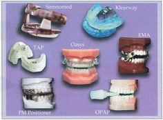 Sleep Apnea Oral Appliance - See more sleep apnea tips at StopSnoringPlease.com