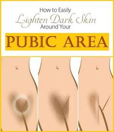 How to Lighten Skin Around Your Pubic Area