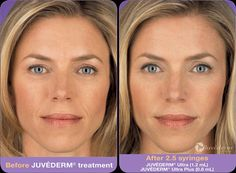 Juvederm injectable gel is a product made with smooth hyaluronic acid. At New Jersey plastic surgery, we typically use it for the correction of moderate to severe facial wrinkles and folds located around the nose and mouth. Facial Fillers, Botox Fillers, Dermal Fillers, Lip Fillers, Skin Treatments, Relleno Facial, Hyaluronic Acid Fillers, Botox Cosmetic, Beauty Hacks