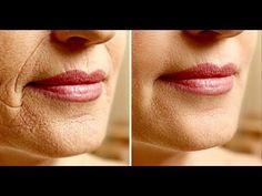 Passe água oxigenada no seu rosto todas as noites - e isso vai acontecer em poucos dias! - YouTube