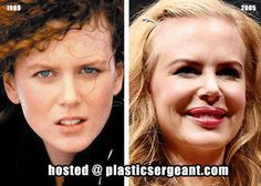Nicole Kidman Plastic Surgery Before and After Photos: Breast Implants, Botox and Lip Injections! - Celebrity Weight Loss and Celebrity Plastic Surgery Botched Plastic Surgery, Bad Plastic Surgeries, Plastic Surgery Gone Wrong, Plastic Surgery Photos, Lip Augmentation, Celebrity Plastic Surgery, Nose Surgery, Celebrities Before And After, Under The Knife