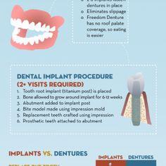 Discovering Dental Implants