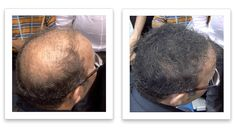 Watch This. Fuller Hair, Thinning Hair, Hair Loss, Hair Growth, Healthy Living, Watch, Easy, Projects, Hair Growing