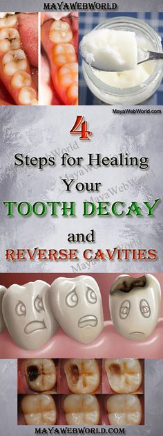 4 Steps for Healing Your Tooth Decay and Reverse Cavities – MayaWebWorld