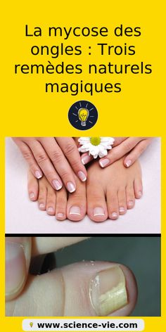 The advantage of the gel is that it allows you to enjoy your French manicure for a long time. There are four different ways to make a French manicure on gel nails. The choice depends on the experience of the nail stylist… Continue Reading → Nail Fungus, Feet Care, Fungi, Nail Care, Diy Beauty, Nail Art Designs, My Nails, Natural Remedies, Science