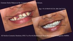 Smile Makeover in Bangalore. -SCULPTING A NEW SMILE! Cosmetic dentistry, Smile designing, Smile makeover, Smile Sculpting, Aesthetic Dentistry. All these terms indicate the same treatment options. In simple words it means sculpting a better smile by changing the alignment, shape, color and texture of your existing teeth by modifying them with the help of ceramic/porcelain crowns/veneers. More at https://www.facebook.com/Allsmilescosmeticdentistry