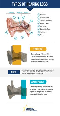 Types of hearing loss.Dr Carron said the middle ear was perfect so that… Speech And Hearing, Hearing Aids, Speech Language Pathology, Speech And Language, Ear Health, Dental Health, Ear Anatomy, Hearing Impairment, Middle Ear