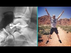 [Interview with Kevin Maas] Avascular Necrosis In His Ankle Disappeared In 4 Weeks Avascular Necrosis, Outdoor Activities, Mindful, Recovery, Interview, Ankle, Life, Wall Plug, Wilderness Survival