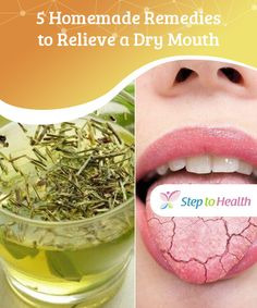 5 Homemade Remedies to Relieve a Dry Mouth — Step To Health Dry Mouth And Lips, Dry Lips, Remedies For Dry Mouth, Mouth Problems, Lupus Diet, How To Grow Muscle, Natural Essential Oils, Natural Home Remedies, Health Remedies