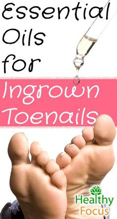 Find out how to get rid of an ingrown nail and avoid infections. Soaking, essential oils, coconut oil and physical removal can work at home. Coconut Oil For Dogs, Coconut Oil Uses, Coconut Oil For Skin, Essential Oils For Face, Essential Oil Uses, Young Living Essential Oils, Essie, Easential Oils, Nagel Hacks