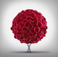 İstanbul Meorial Hastanesi Hematoloji ve Onkoloji Uzmanı Doç. Dr. Soley Bayraktar'ın onkoloji-kanser, hematoloji hakkındaki blog yazıları