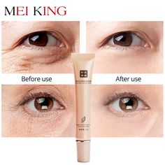 Buy MEIKING Hyaluronic Acid Eye Cream Anti-Wrinkle Remover Dark Circles Eye Essence Against Puffiness Anti Aging Ageless Instantly Anti Aging Cream, Anti Aging Skin Care, Dark Circles Makeup, Moisturizer For Dry Skin, Prevent Wrinkles, Under Eye Wrinkles, Wrinkle Remover, Anti Wrinkle, Wrinkle Creams