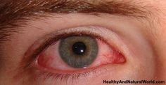 Home Remedies for Eye Infection That Actually Work