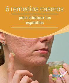 6 remedios caseros para eliminar las espinillas El acné es uno de las afecciones cutáneas más comunes en toda la población mundial. Generalmente se manifiesta en forma de espinillas o puntos negros, así como en granos o quistes en la cara, espalda y pecho.