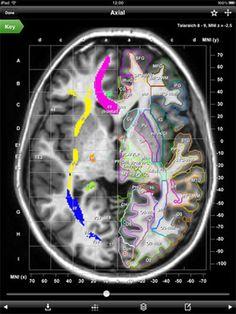 Elsevier MRI Atlas of Human White Matter for iPads