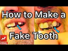 How to make a Fake Tooth at home! Teeth Health, Healthy Teeth, Women's Health, Health Fitness, Perfect Teeth, Perfect Smile, Tonsil Stone Removal, Dental Videos, Veneers Teeth