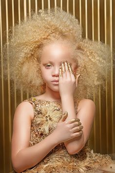 """🥰💕👼🚨Albinism is Beauty from Black Women. Whiteys say it's from inbreeding and I say: """"Down syndrome"""" is from inbreeding as they are a drain on the health system and Albinos are very much independent and mentally superior 🥰💕👼🚨 Black Is Beautiful, Beautiful Eyes, Pretty People, Beautiful People, Style Afro, Vitiligo Treatment, Beauty And Fashion, Pelo Natural, Tips Belleza"""