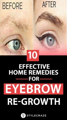 7 Ways To Regrow Eyebrows Naturally Gone are the days when pencil thin brows were in. Today, women are aiming for thick and slightly bushy eyebrows. But are eyebrows only meant to define your face? SEE DETAILS. Dark Eyebrows, Full Eyebrows, How To Grow Eyebrows, Natural Eyebrows, Growing Out Eyebrows, Sparse Eyebrows, Bushy Eyebrows, Natural Skin, Natural Makeup