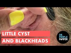 An epidermoid cyst (Epidermal Inclusion cyst, Infundibular cyst), is a benign growth commonly found in the skin and typically appears on the face, neck or tr. Deep Blackheads, Pimples, Epidermoid Cyst, Comedone Extractor, Medical Advice, Keratin, Herbalism, Skin Care