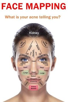 Face Mapping: What Your Skin Is Trying To Tell You Acne won't quit? Try face mapping: looking at exactly where, when, and what kind of blemishes pop up to figure out what your body's trying to tell you. Acne Skin, Acne Scars, Oily Skin, Acne Face, Facial Acne Map, Acne On Jawline, Gesicht Mapping, Chinese Face Map, Chinese Face Reading