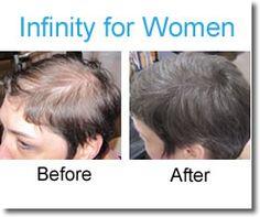 Hair Loss Solutions for Women with Infinity Hair Fibers.   855-Hair-Fiber (855-424-7342)