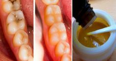 We are going to talk now about tooth masks that are able to reverse tooth decay…