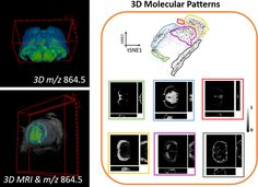[ASAP] Automatic 3D Nonlinear Registration of Mass Spectrometry Imaging and Magnetic Resonance Imaging Data