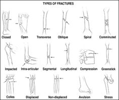 image types_of_fractures for definition side of card Types Of Fractures, Mechanical Force, Image Types, Physical Therapy, Hair Accessories, Teas, Google Search, Tees, Cup Of Tea