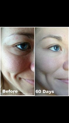 Before & After Pictures | Nerium International 30-day money back guarantee  www.katiemoser.nerium.com