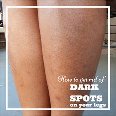 get rid of dark spots on legs strawberry skin