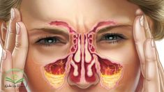 Sinusitis, commonly known as a sinus infection, is the inflammation of the lining walls of the sinuses and it's a common problem for many people around the world. This means that if you're dealing with a chronic sinus infection, you may be experiencing some of the followingcommon symptoms: headaches stuffed nose loss of smell cough …