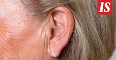 Tutkimuksen mukaan tietynlainen ryppy korvalehdessä voi olla merkki korkeammasta riskistä saada aivoinfarkti.