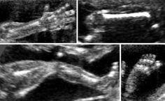 Skeleton - DIAGNOSIS OF FETAL ABNORMALITIES - THE 18-23 WEEKS SCAN