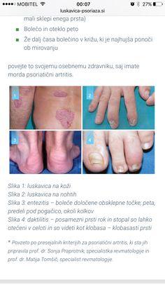 http://luskavica-psoriaza.si/luskavica-in-sklepi-2/simptomi-psoriaticnega-artritisa/