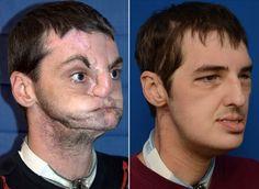 Plastic Surgery Miracles VIP Plastic Surgery www.VIPplasticsurgery.com