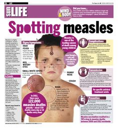 Measles is a highly contagious, serious disease caused by a virus. Worldwide, it is one of the leading causes of death among young children — even though a safe and cost-effective vaccine is available. In 1980, before widespread vaccination, measles caused an estimated 2.6 million deaths each year.