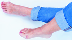 Getting the best of bothersome bunions