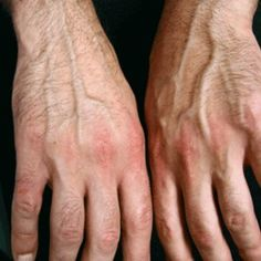 Home Remedies For Psoriatic Arthritis Treatment - How to Treat Psoriatic Arthritis | Find Herbal Remedy