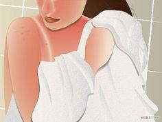 Cómo eliminar una quemadura de sol (piel clara)